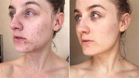 Woman Swaps Cleanser for Micellar Water and Transforms Her