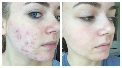 Get Clear & Acne Free Skin Fast and Naturally! ☾ Nika