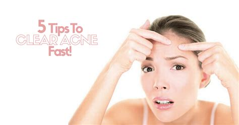 5 Tips to Clear Acne Fast!