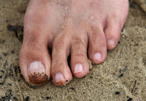 What to Do When Your Get White Spots on Your Toenails