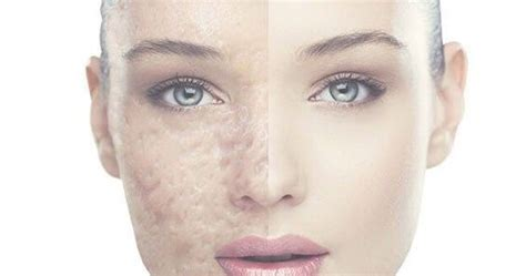 How to Heal Acne Fast and Naturally?